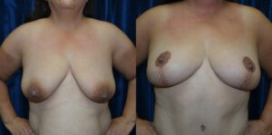 Patient 1c Mommy Makeover Before and After