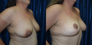 Patient 1d Mommy Makeover Before and After