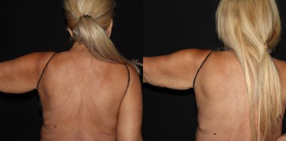 Patient 6a CoolSculpting Before and After
