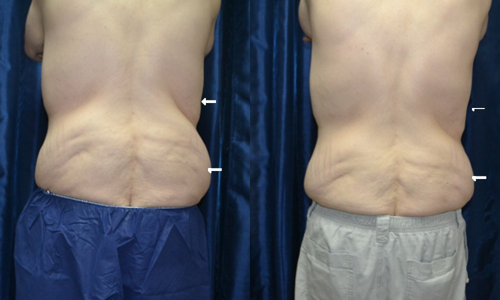 Patient 1 CoolSculpting Before and After