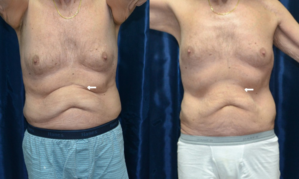 Patient 4 CoolSculpting Before and After