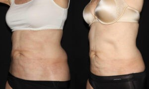 Patient 7b CoolSculpting Before and After