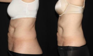 Patient 7c CoolSculpting Before and After