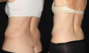 Patient 7d CoolSculpting Before and After