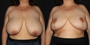 kaweski-san-diego-breast-reduction-patient-10-1