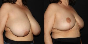 kaweski-san-diego-breast-reduction-patient-10-2