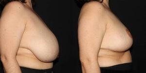 kaweski-san-diego-breast-reduction-patient-10-3