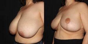 kaweski-san-diego-breast-reduction-patient-10-4