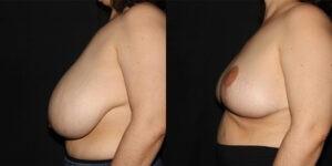 kaweski-san-diego-breast-reduction-patient-10-5