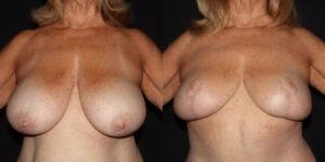 kaweski-san-diego-breast-reduction-patient-patient-11-1