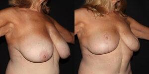 kaweski-san-diego-breast-reduction-patient-patient-11-2