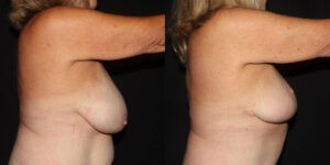 kaweski-san-diego-breast-reduction-patient-patient-11-3